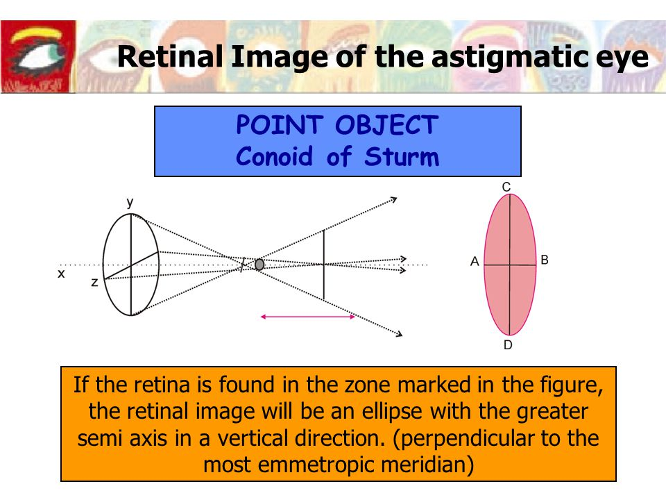 Retinal Image of the astigmatic eye If the retina is found in the zone marked in the figure, the retinal image will be an ellipse with the greater semi axis in a vertical direction.