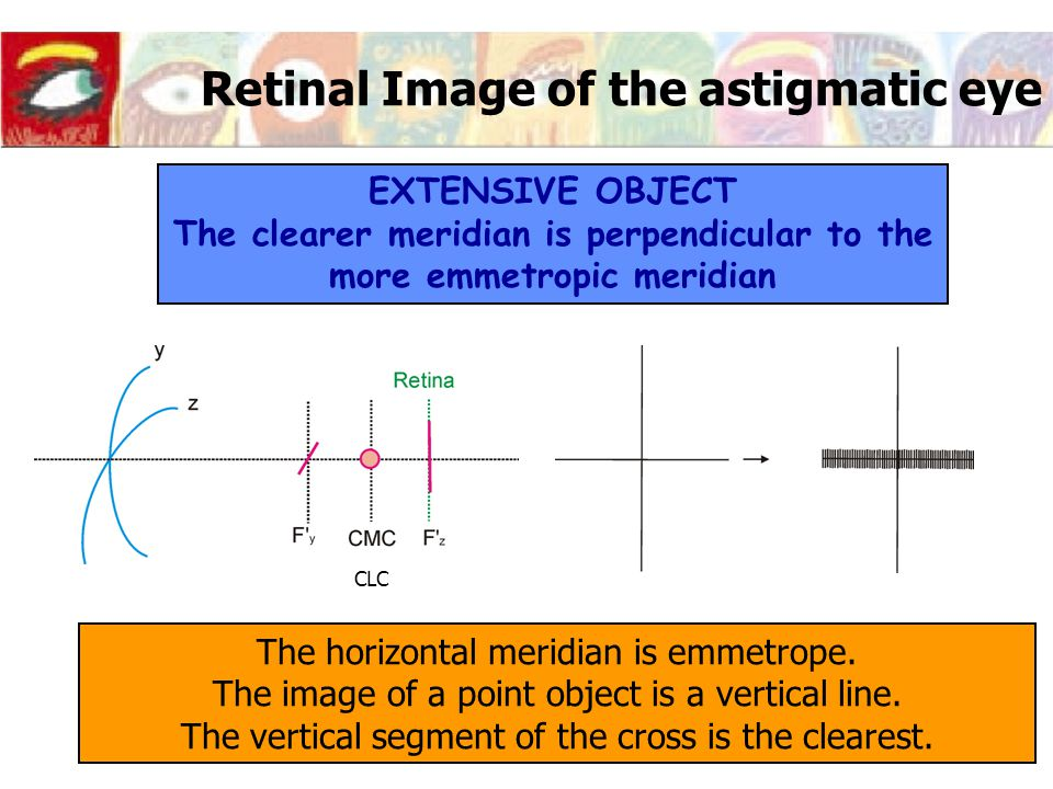 Retinal Image of the astigmatic eye EXTENSIVE OBJECT The clearer meridian is perpendicular to the more emmetropic meridian The horizontal meridian is emmetrope.