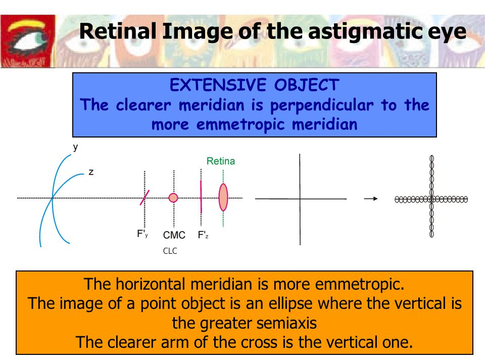 Retinal Image of the astigmatic eye EXTENSIVE OBJECT The clearer meridian is perpendicular to the more emmetropic meridian The horizontal meridian is more emmetropic.