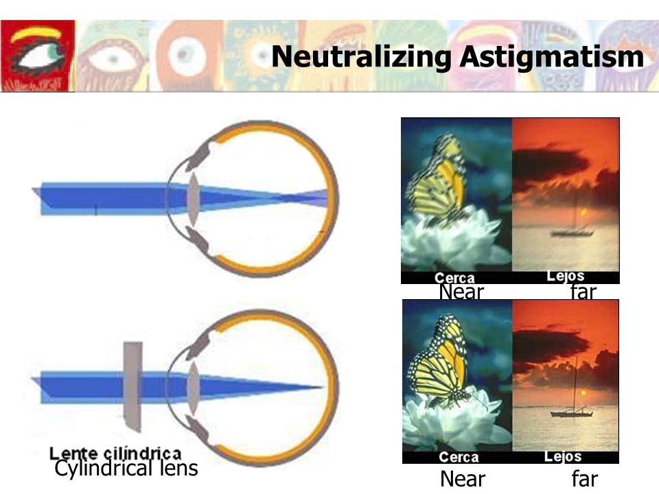 Neutralizing Astigmatism Cylindrical lens Nearfar