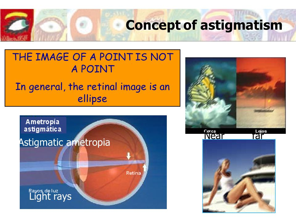 Concept of astigmatism THE IMAGE OF A POINT IS NOT A POINT In general, the retinal image is an ellipse Near far Astigmatic ametropia Light rays