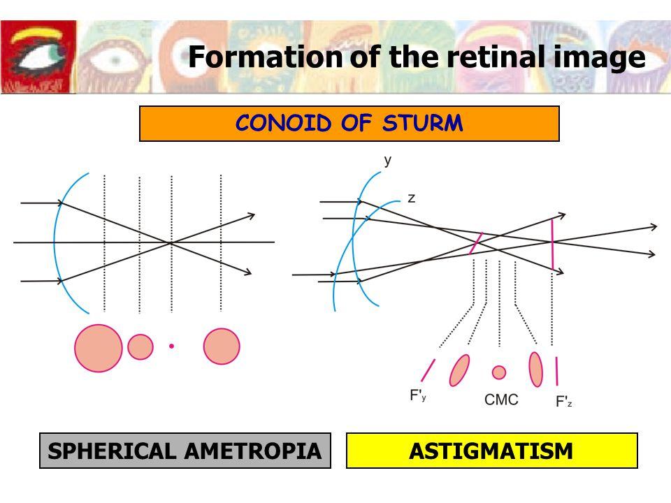 Formation of the retinal image CONOID OF STURM SPHERICAL AMETROPIAASTIGMATISM