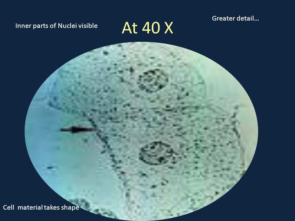At 40 X Greater detail… Cell material takes shape Inner parts of Nuclei visible
