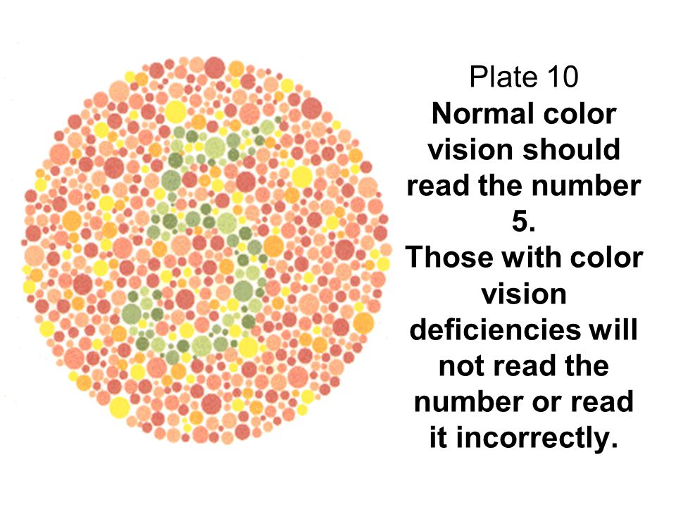 Plate 10 Normal color vision should read the number 5. Those with color vision deficiencies will not read the number or read it incorrectly.