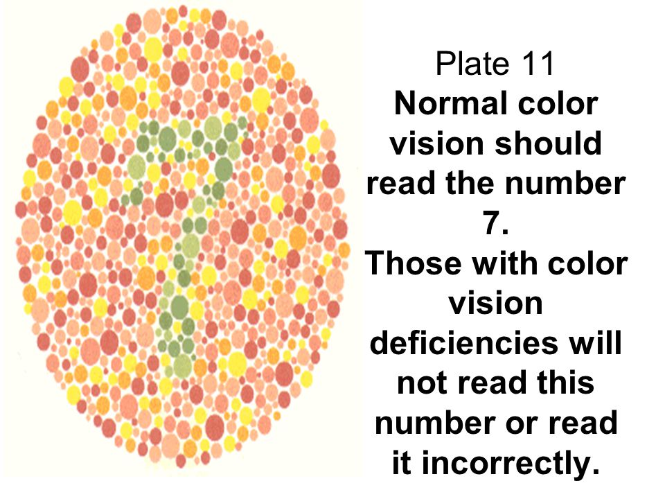 Plate 11 Normal color vision should read the number 7. Those with color vision deficiencies will not read this number or read it incorrectly.