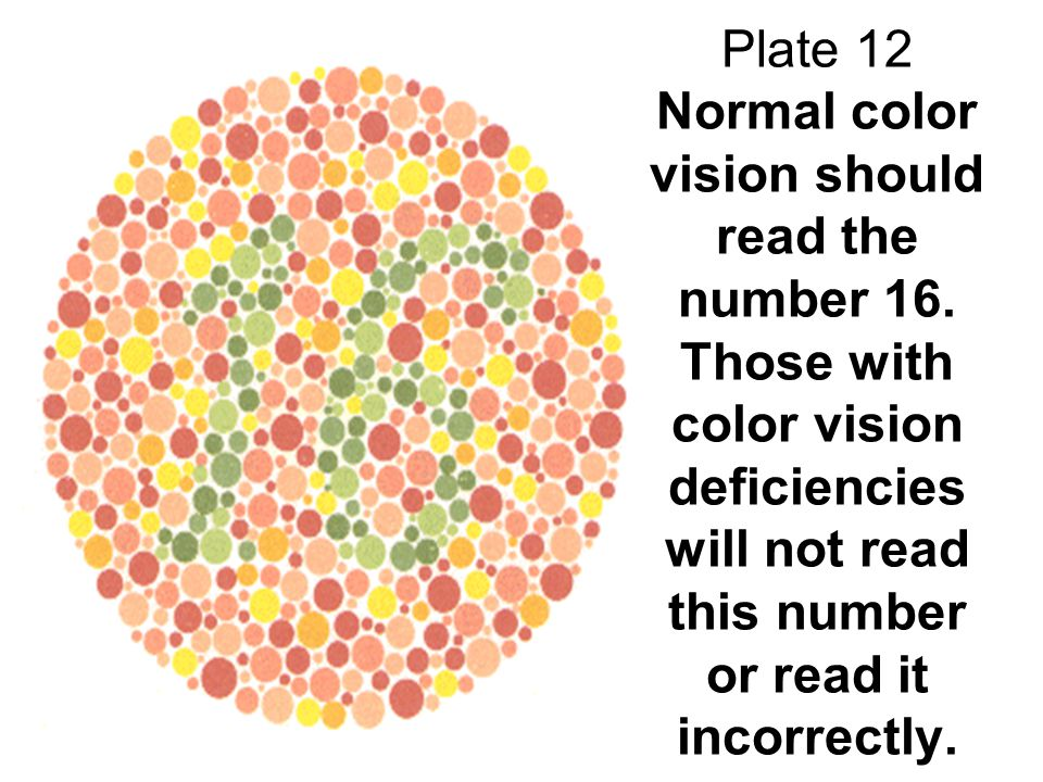 Plate 12 Normal color vision should read the number 16. Those with color vision deficiencies will not read this number or read it incorrectly.