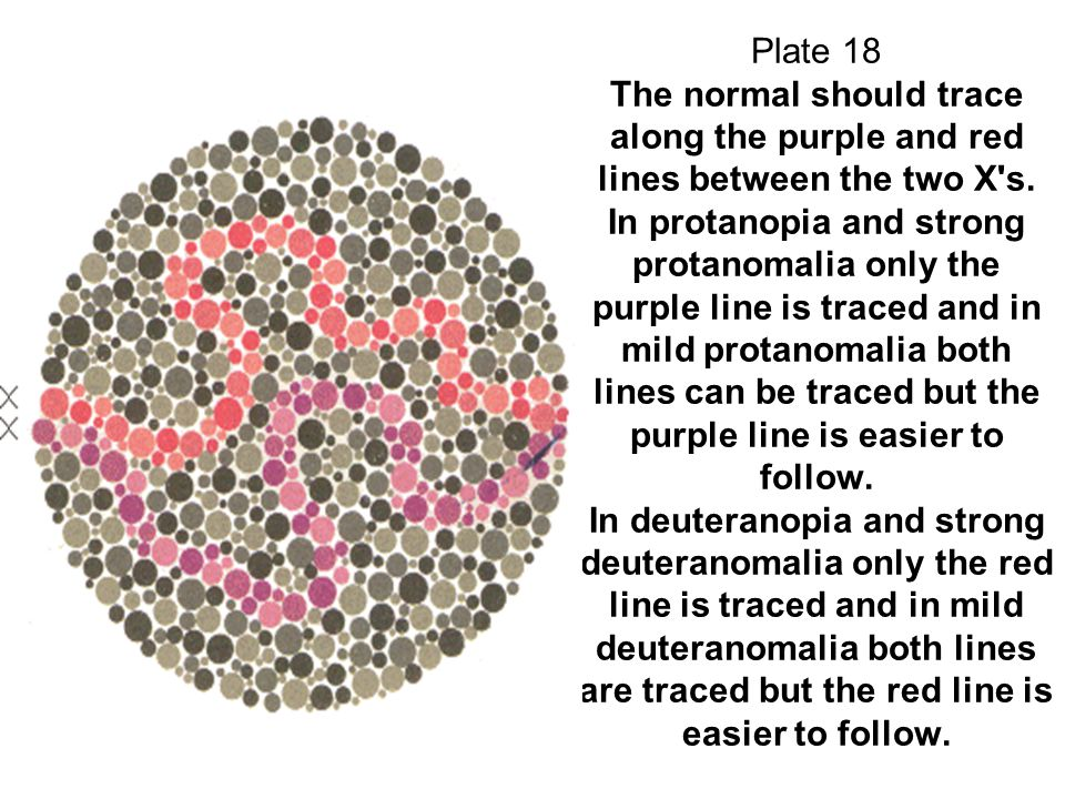 Plate 18 The normal should trace along the purple and red lines between the two X's. In protanopia and strong protanomalia only the purple line is tra
