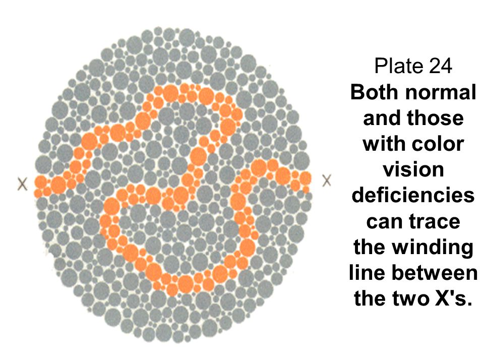 Plate 24 Both normal and those with color vision deficiencies can trace the winding line between the two X's.