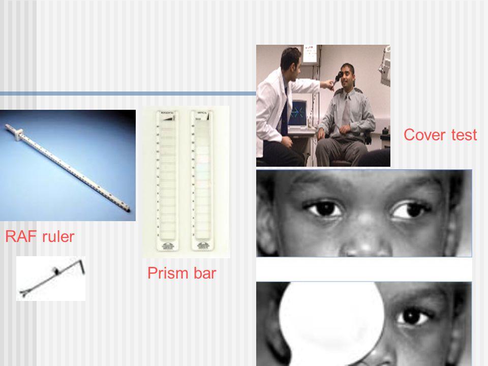 RAF ruler Prism bar Cover test