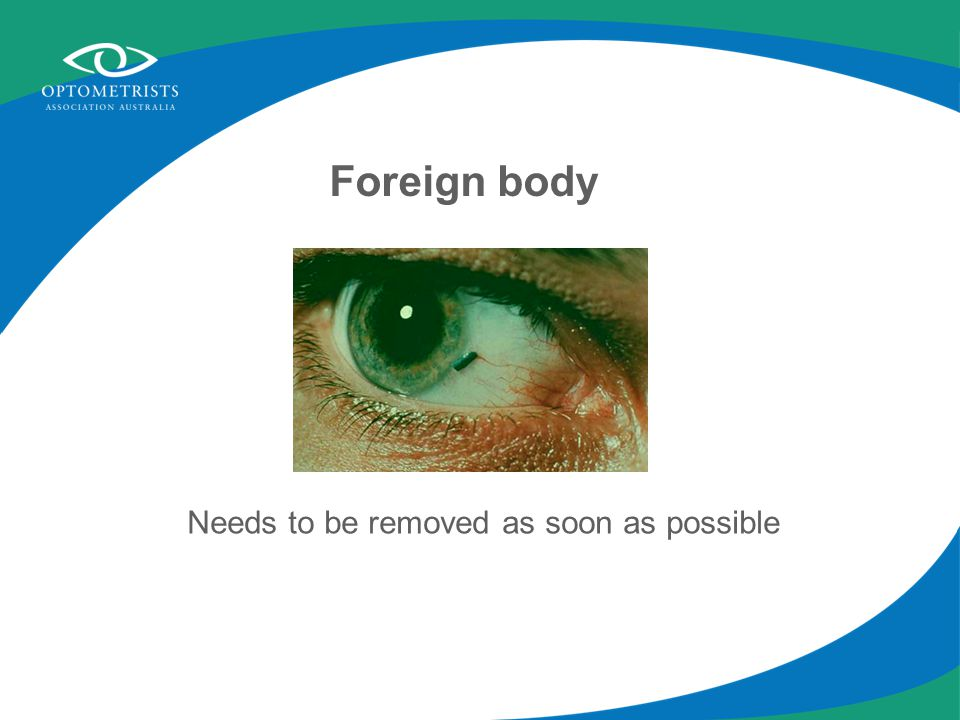 Foreign body Needs to be removed as soon as possible