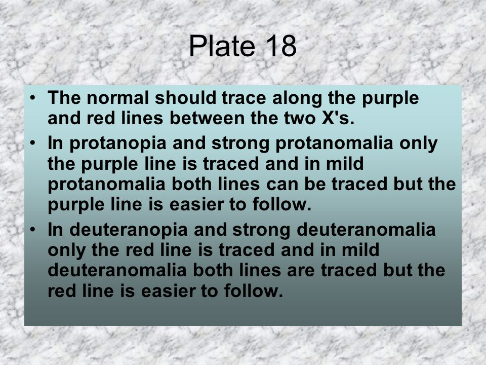 Plate 18 The normal should trace along the purple and red lines between the two X s.