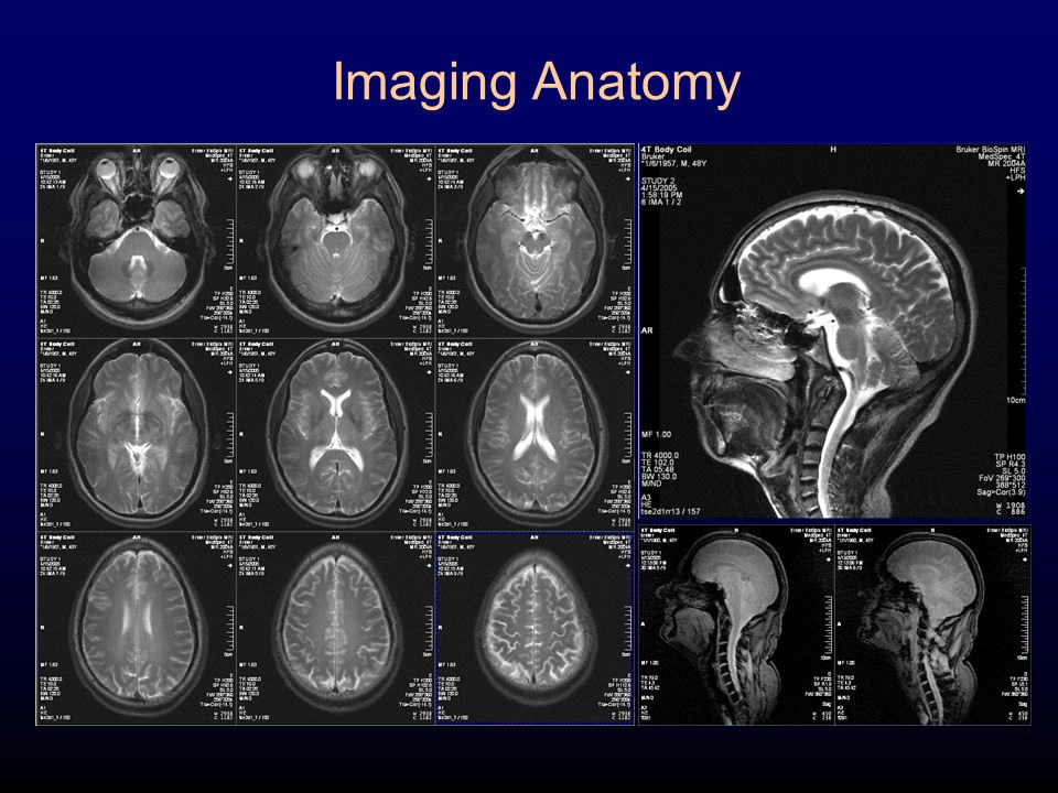 Images provided by J. T. Vaughan, Ph.D. Imaging Anatomy