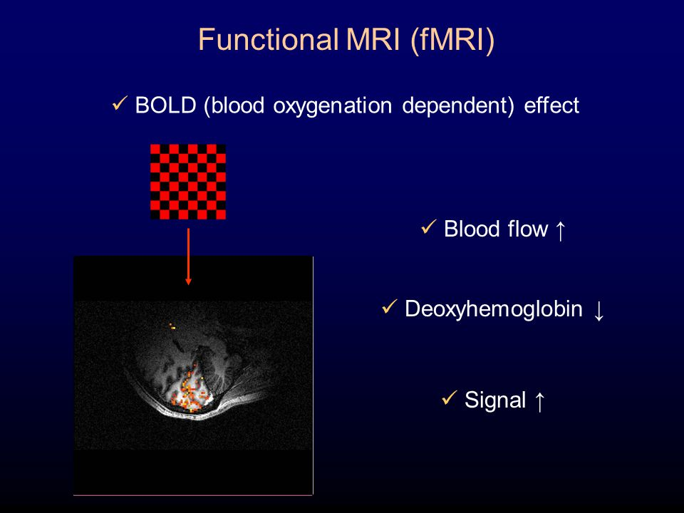 Functional MRI (fMRI) BOLD (blood oxygenation dependent) effect Blood flow ↑ Deoxyhemoglobin ↓ Signal ↑