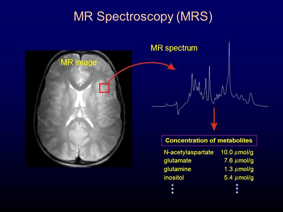 N-acetylaspartate10.0  mol/g glutamate 7.6  mol/g glutamine 1.3  mol/g inositol 5.4  mol/g MR image MR spectrum Concentration of metabolites MR Sp