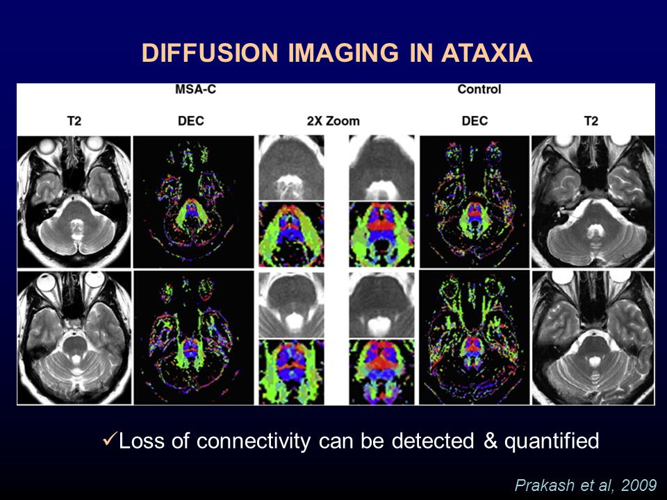 DIFFUSION IMAGING IN ATAXIA Prakash et al, 2009 Loss of connectivity can be detected & quantified