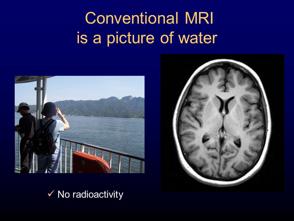 Conventional MRI is a picture of water No radioactivity