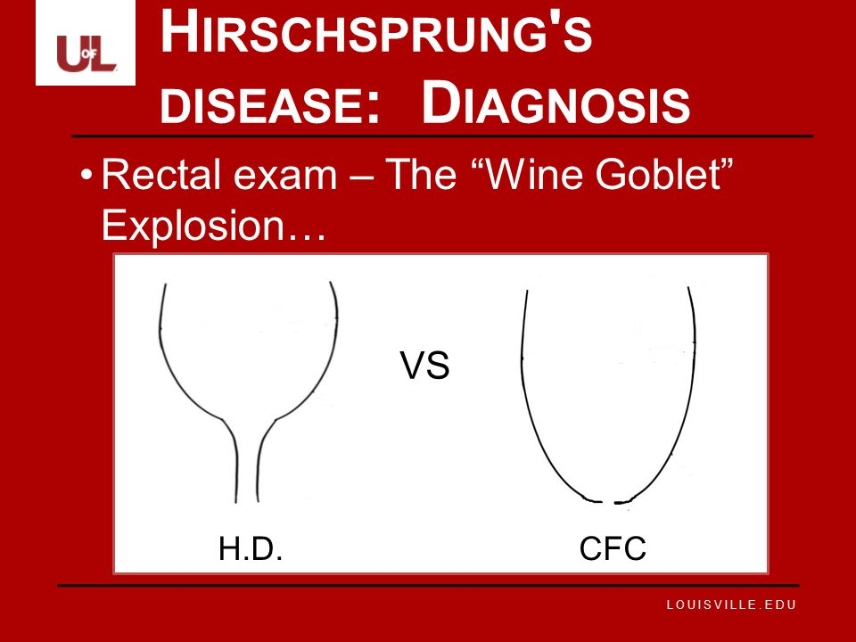 LOUISVILLE.EDU Rectal exam – The Wine Goblet Explosion… H IRSCHSPRUNG S DISEASE : D IAGNOSIS VS H.D.