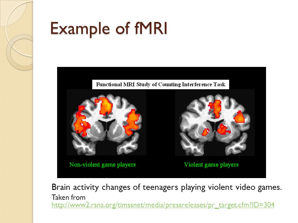 Example of fMRI Brain activity changes of teenagers playing violent video games. Taken from http://www2.rsna.org/timssnet/media/pressreleases/pr_targe