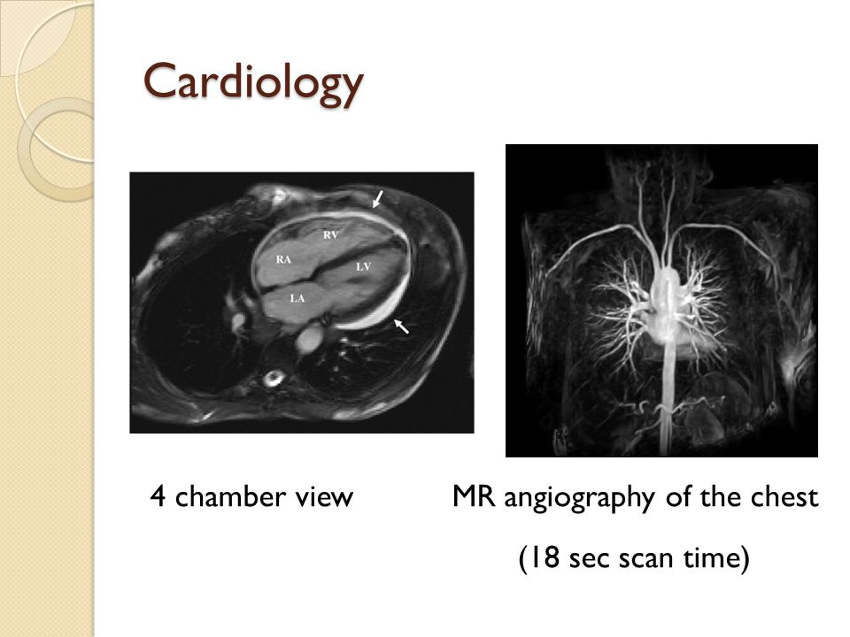 Cardiology 4 chamber view MR angiography of the chest (18 sec scan time)