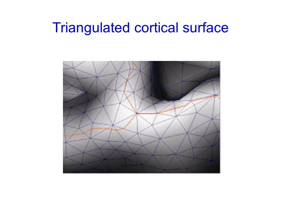 Triangulated cortical surface