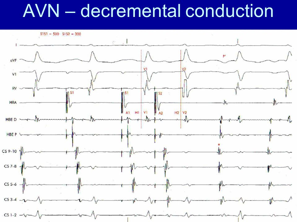 AVN – decremental conduction