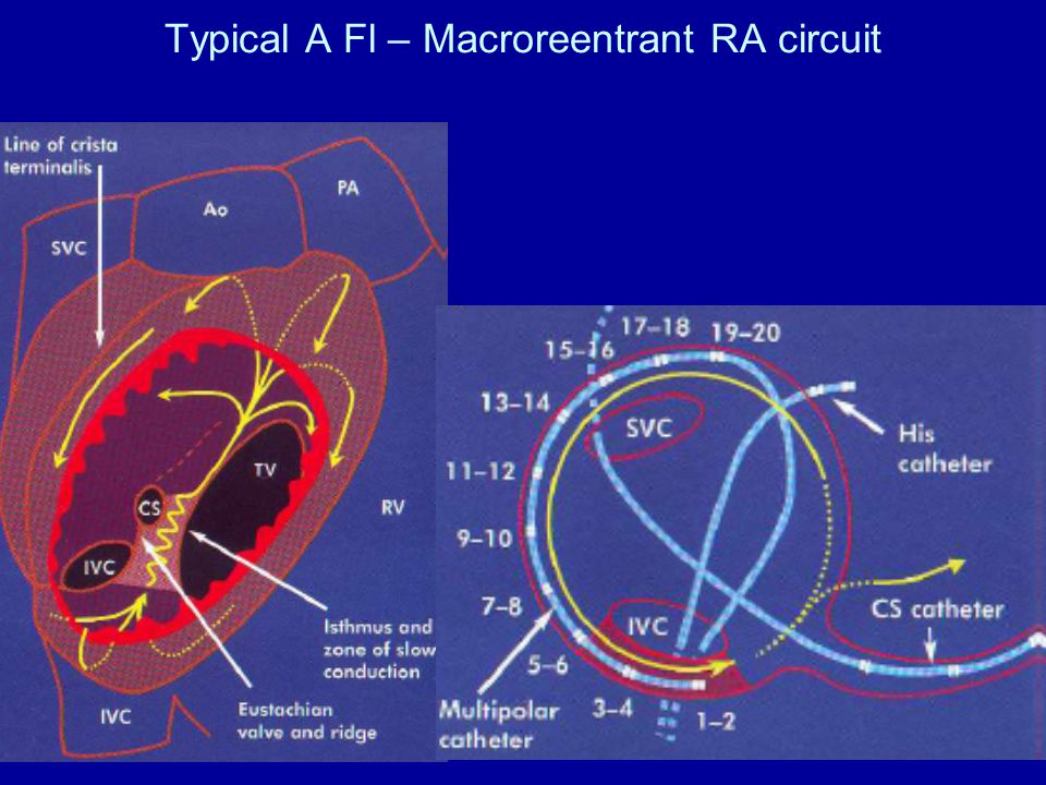 Typical A Fl – Macroreentrant RA circuit