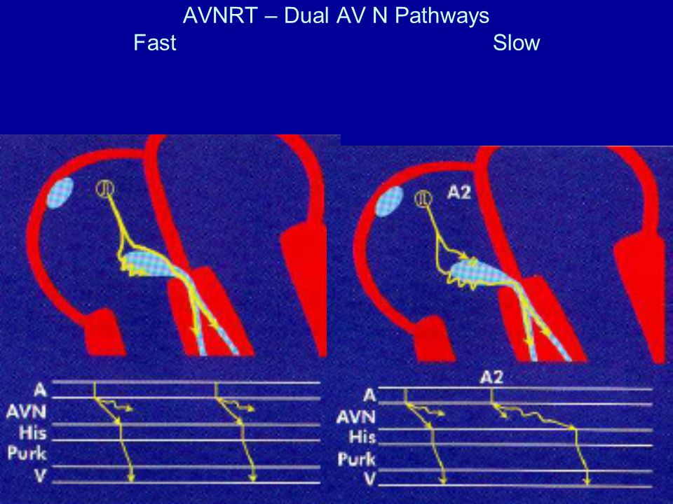 AVNRT – Dual AV N Pathways Fast Slow