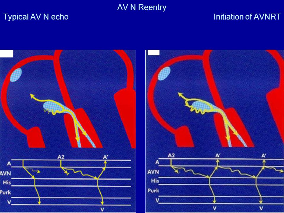 AV N Reentry Typical AV N echo Initiation of AVNRT