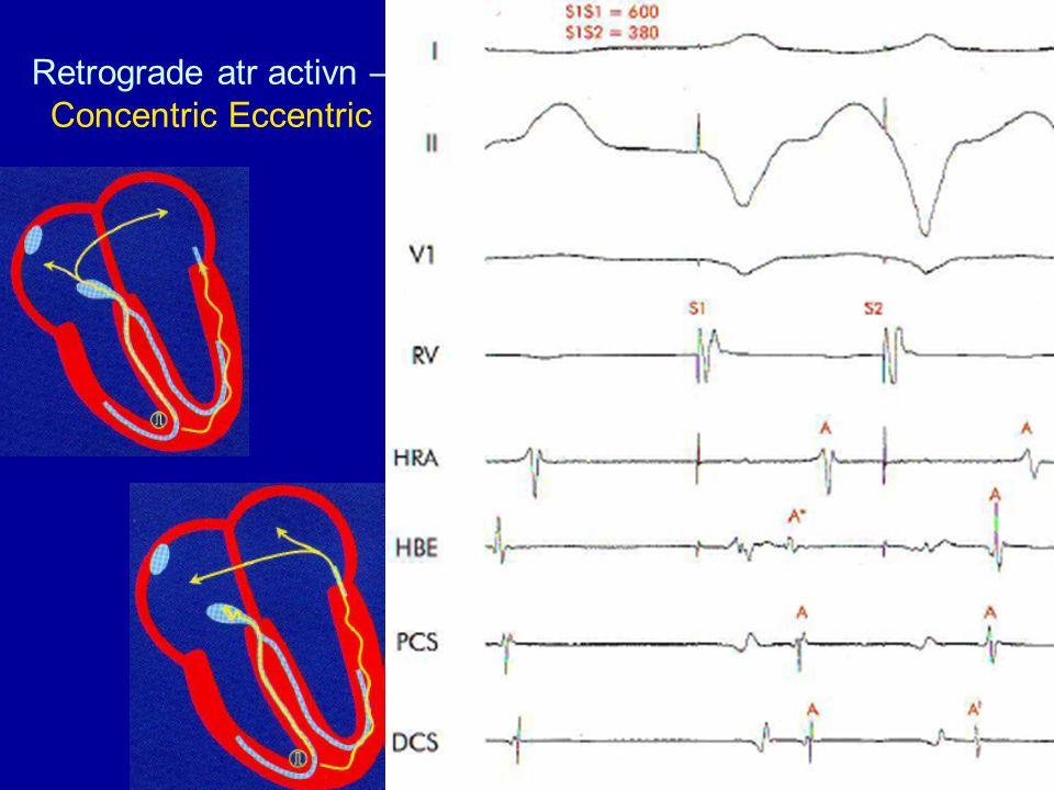 Retrograde atr activn – Concentric Eccentric
