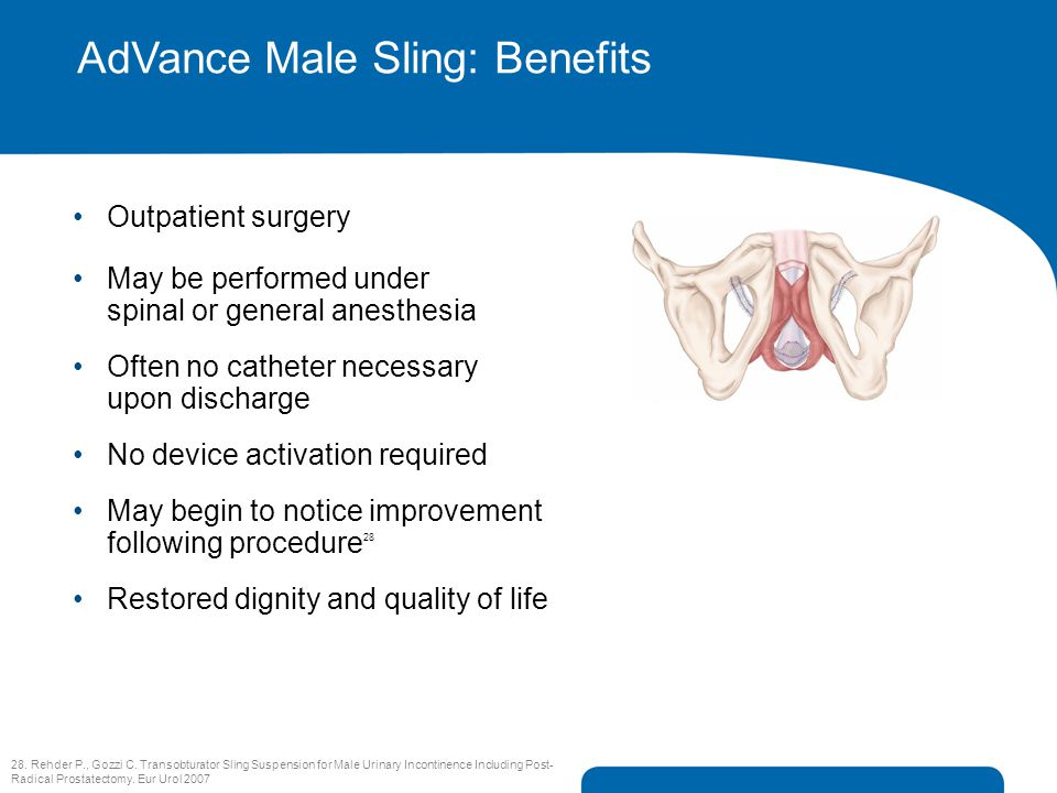 AdVance Male Sling: Benefits Outpatient surgery May be performed under spinal or general anesthesia Often no catheter necessary upon discharge No devi