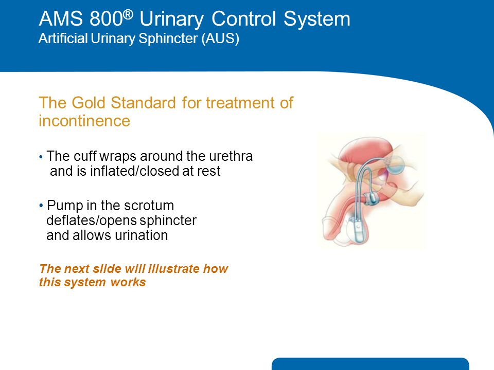 The Gold Standard for treatment of incontinence The cuff wraps around the urethra and is inflated/closed at rest Pump in the scrotum deflates/opens sp