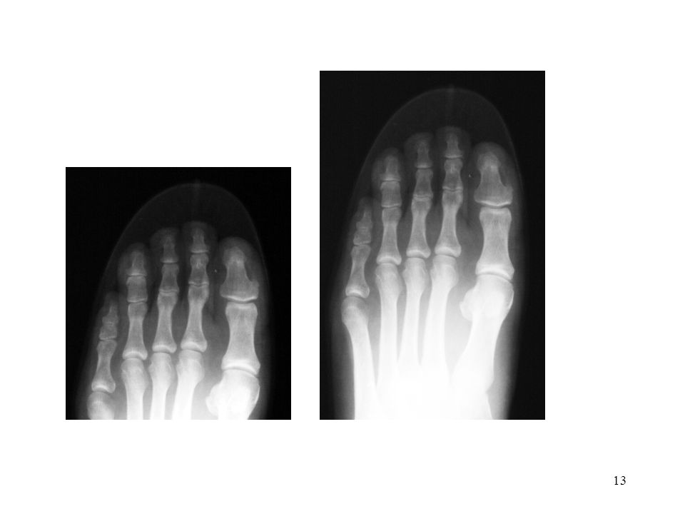 Shoe-Fitting Fluoroscope (ca.