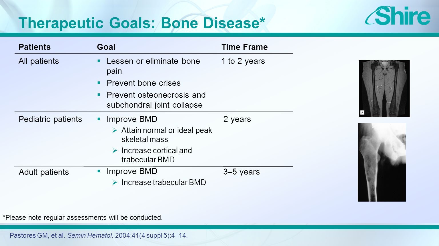 Therapeutic Goals: Bone Disease* Pastores GM, et al.