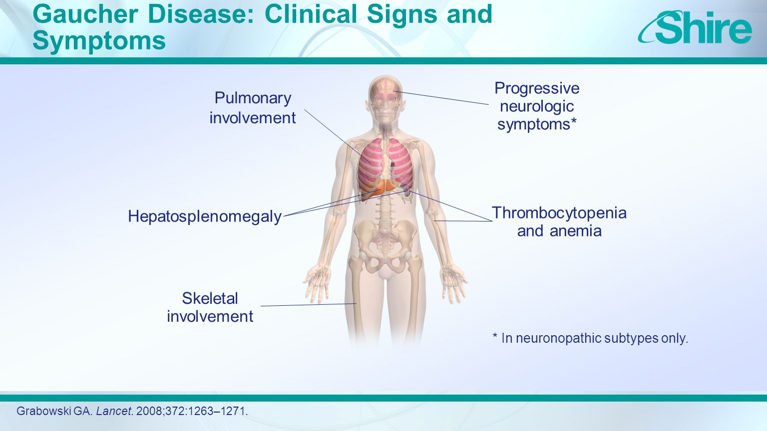 Gaucher Disease: Clinical Signs and Symptoms Grabowski GA.