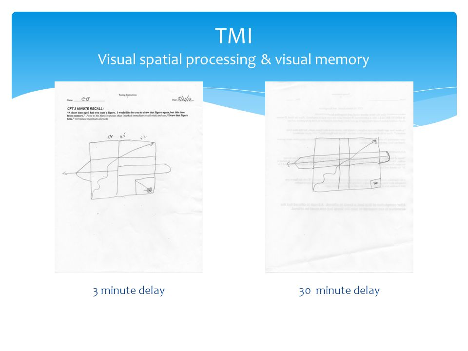 3 minute delay30 minute delay TMI Visual spatial processing & visual memory