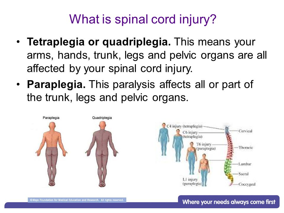 What is spinal cord injury. Tetraplegia or quadriplegia.