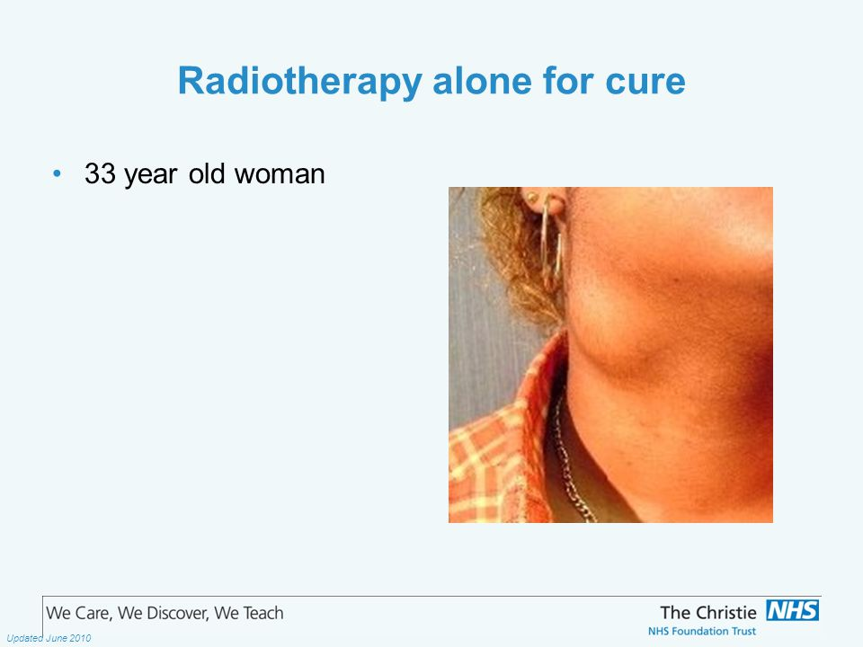 The Christie NHS Foundation Trust Updated June 2010 Radiotherapy alone for cure 33 year old woman