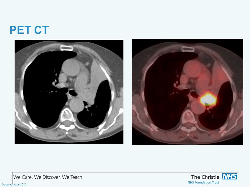The Christie NHS Foundation Trust Updated June 2010 PET CT