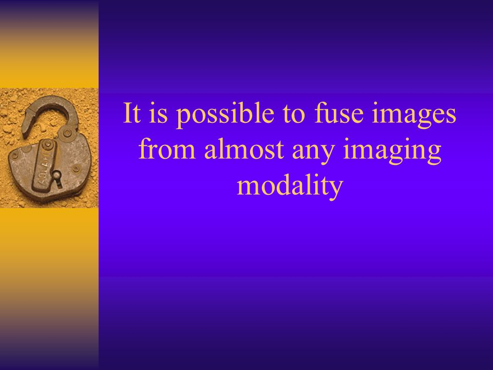 It is possible to fuse images from almost any imaging modality