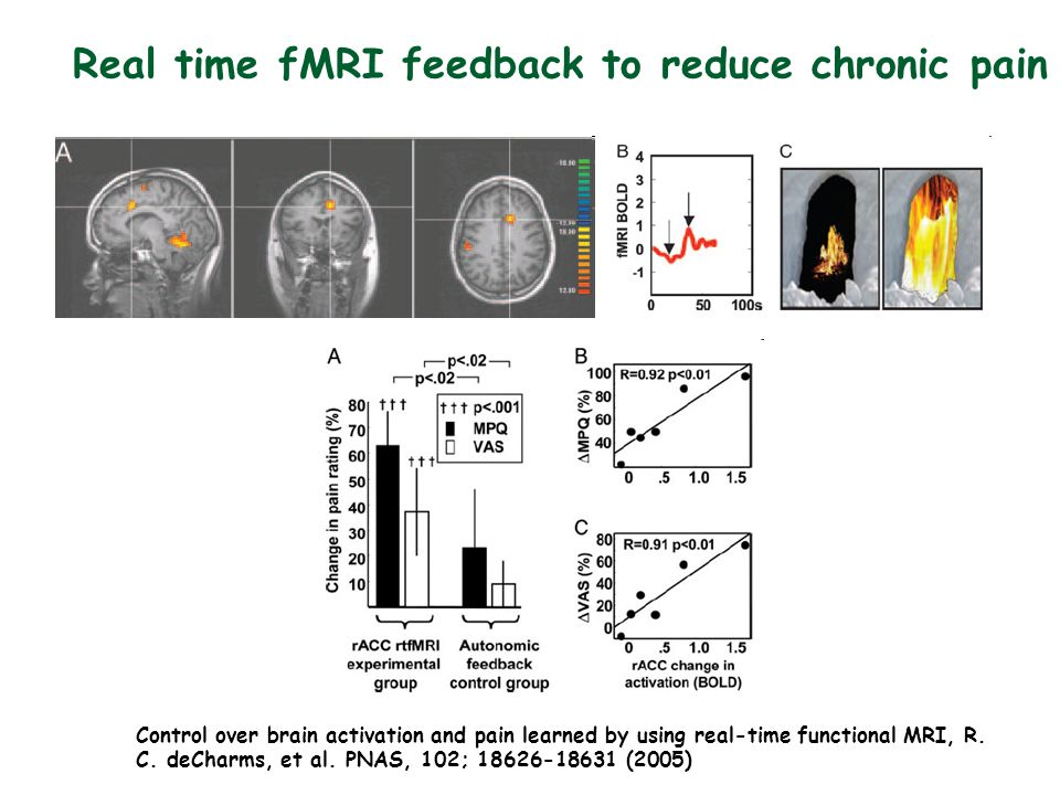 Real time fMRI feedback to reduce chronic pain Control over brain activation and pain learned by using real-time functional MRI, R.