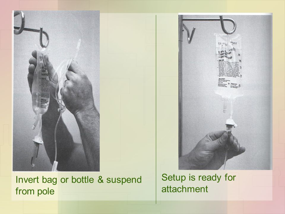 Invert bag or bottle & suspend from pole Setup is ready for attachment