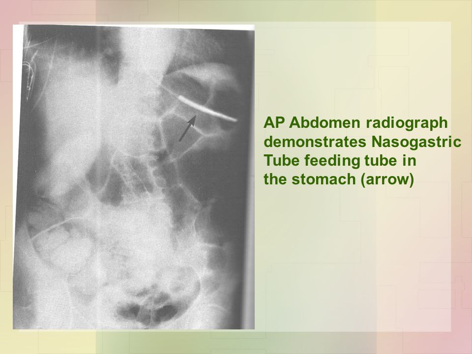 AP Abdomen radiograph demonstrates Nasogastric Tube feeding tube in the stomach (arrow)