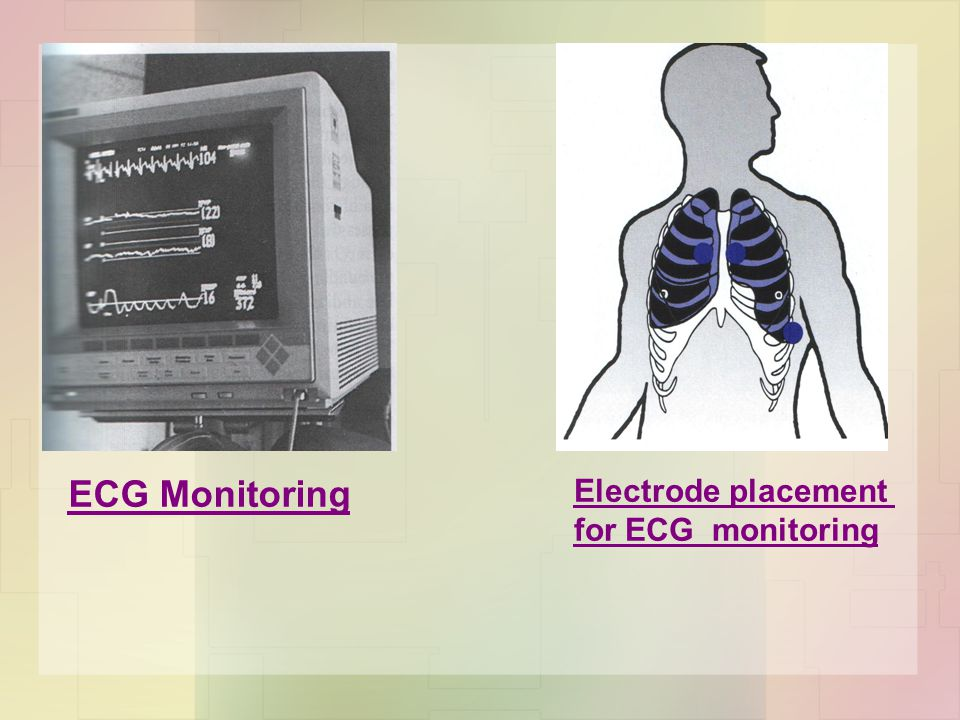  Chest Radiograph with ECG electrode artifact.