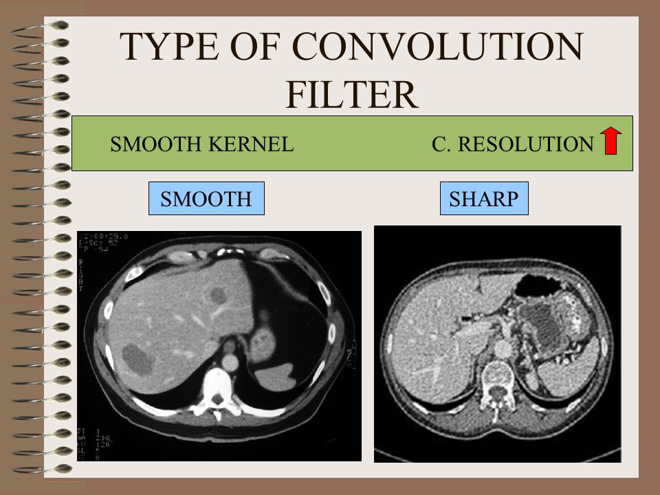 TYPE OF CONVOLUTION FILTER SMOOTH KERNEL C. RESOLUTION SMOOTHSHARP