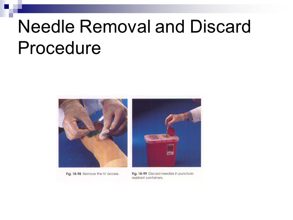 Needle Removal and Discard Procedure