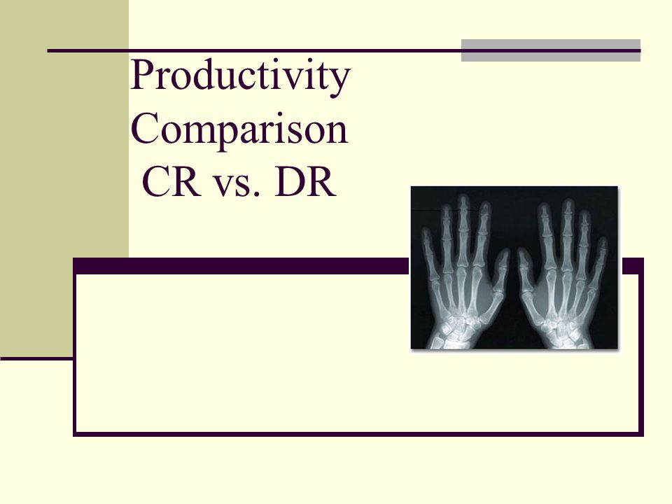Productivity Comparison CR vs. DR