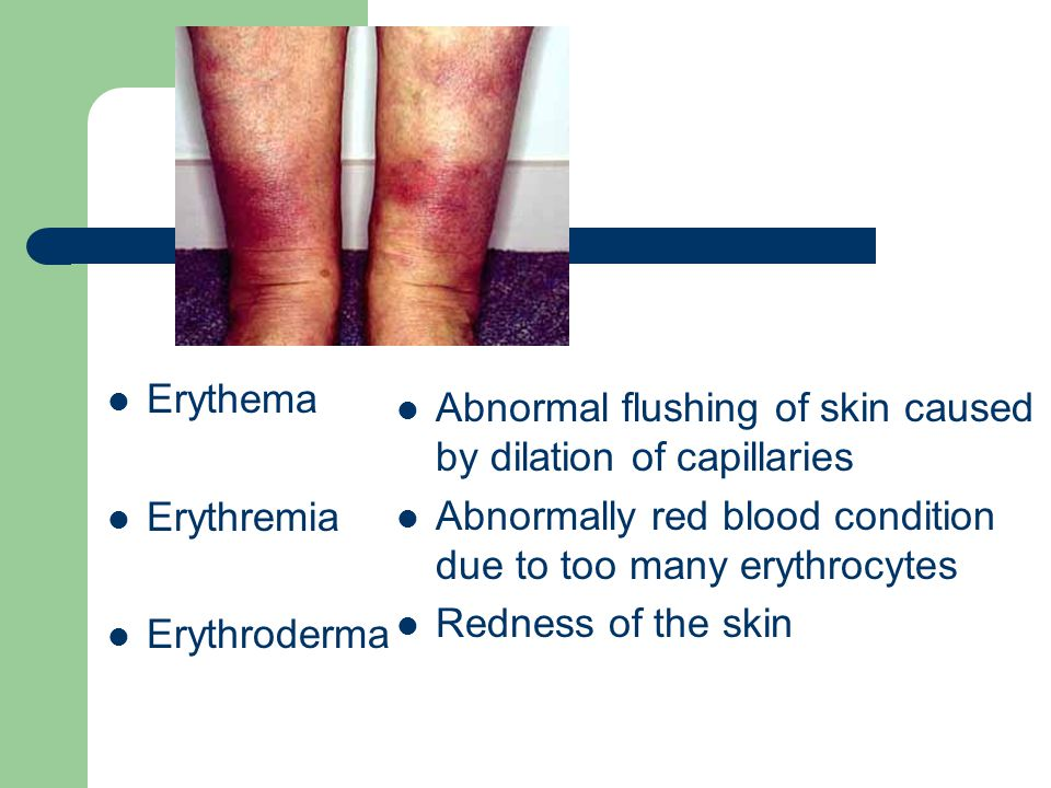 Erythema Erythremia Erythroderma Abnormal flushing of skin caused by dilation of capillaries Abnormally red blood condition due to too many erythrocyt