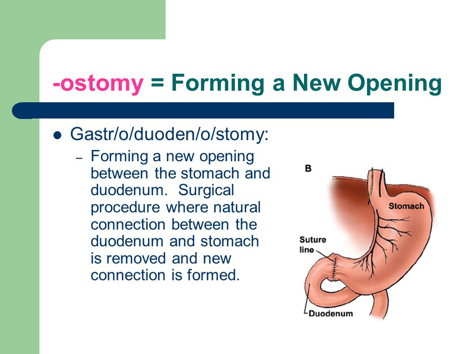-ostomy = Forming a New Opening Gastr/o/duoden/o/stomy: – Forming a new opening between the stomach and duodenum.