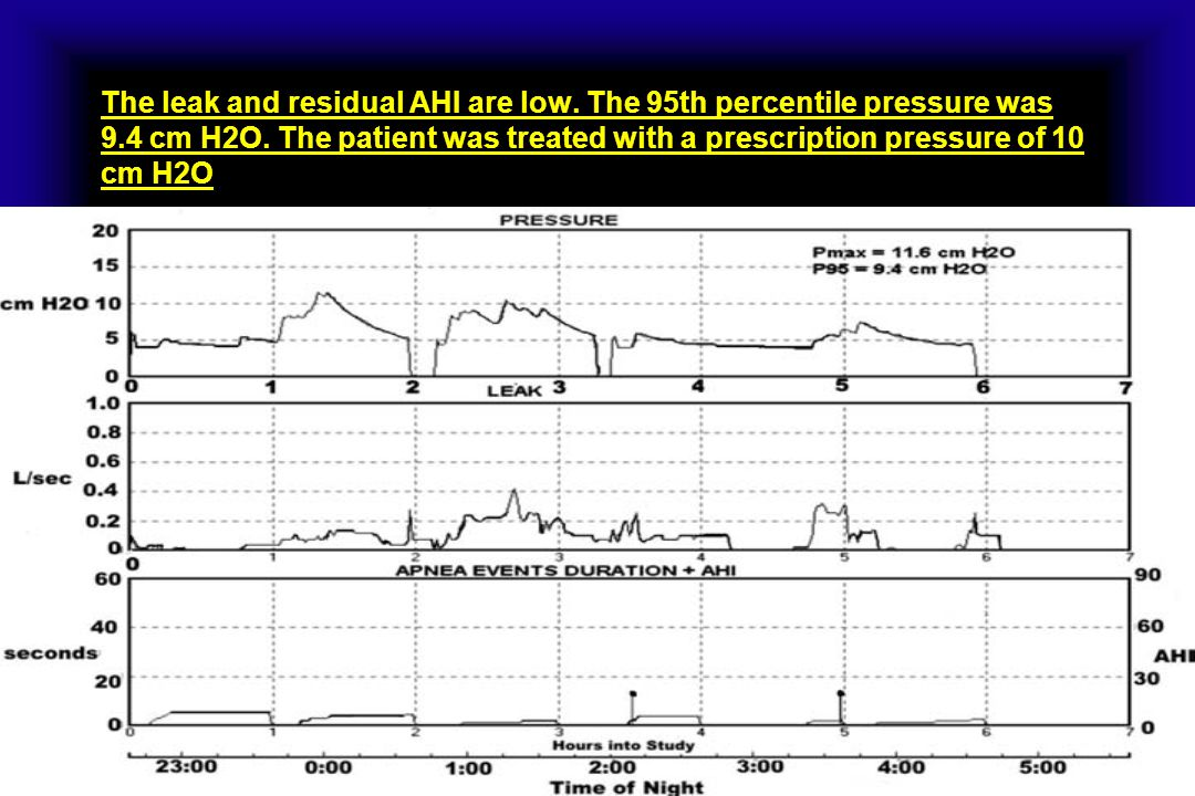 The leak and residual AHI are low. The 95th percentile pressure was 9.4 cm H2O. The patient was treated with a prescription pressure of 10 cm H2O
