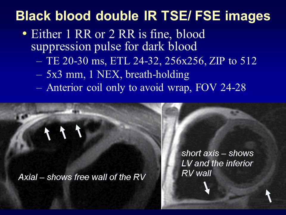 Black blood double IR TSE/ FSE images Either 1 RR or 2 RR is fine, blood suppression pulse for dark blood – TE 20-30 ms, ETL 24-32, 256x256, ZIP to 512 – 5x3 mm, 1 NEX, breath-holding – Anterior coil only to avoid wrap, FOV 24-28